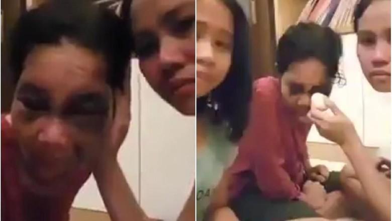 Sempat Viral Karena Lebam, TKW di Malaysia Akhirnya Dipulangkan
