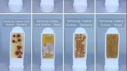 Berbagai penelitian telah menyebut bahwa smartphone terpapar lebih banyak bakteri dibanding toilet. Foto-foto ini jadi bukti atas kenyataan tersebut.