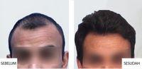 Rambut Rontok dan Rapuh Bisa Cepat Diatasi dengan Cara Ini
