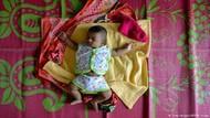 Bakteri Probiotik di Tinja Bayi Bisa Sembuhkan Diabetes
