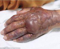 Tangan Pria Ini Harus Diamputasi Karena Terinfeksi Ikan Mentah