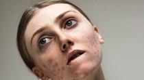 Ada Pesan Positif di Balik Model yang Bangga Pamer Foto Penuh Jerawat
