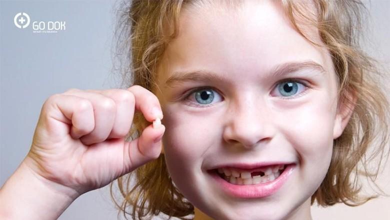 Penyebab dan Cara Mencegah Gigi Patah pada Anak/ Foto: go dok