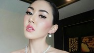 Potret Mantan Ratu Kecantikan yang Bunuh Diri di Klinik Kecantikan