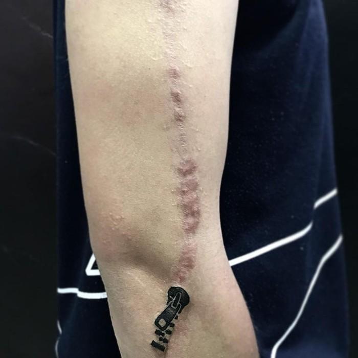Untuk ada ritsleting yang bisa buka tutup luka. (Foto: Instagram/eulucasrib)