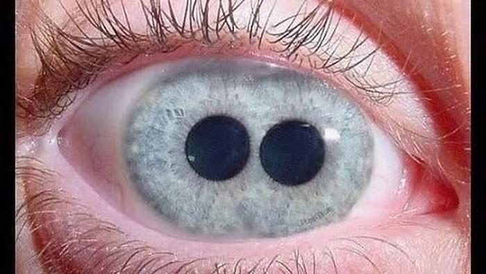 Polycoria, kelainan yang menyebabkan satu mata memiliki dua pupil atau lebih. Foto: Instagram/nazynarcos