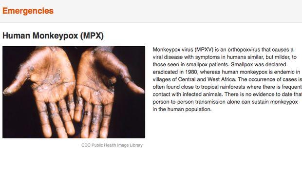 Cacar monyet atau Human Monkeypox (MPXV) menurut WHO.