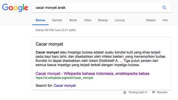 Salah satu hasil pencarian 'cacar monyet' di Google mengarahkan pada artikel tentang impetigo, kondisi kulit yang menyebabkan anak gatal-gatal.