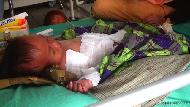 Balita di Bone Tersiram Air Panas, Keluarga Kesulitan Biaya RS