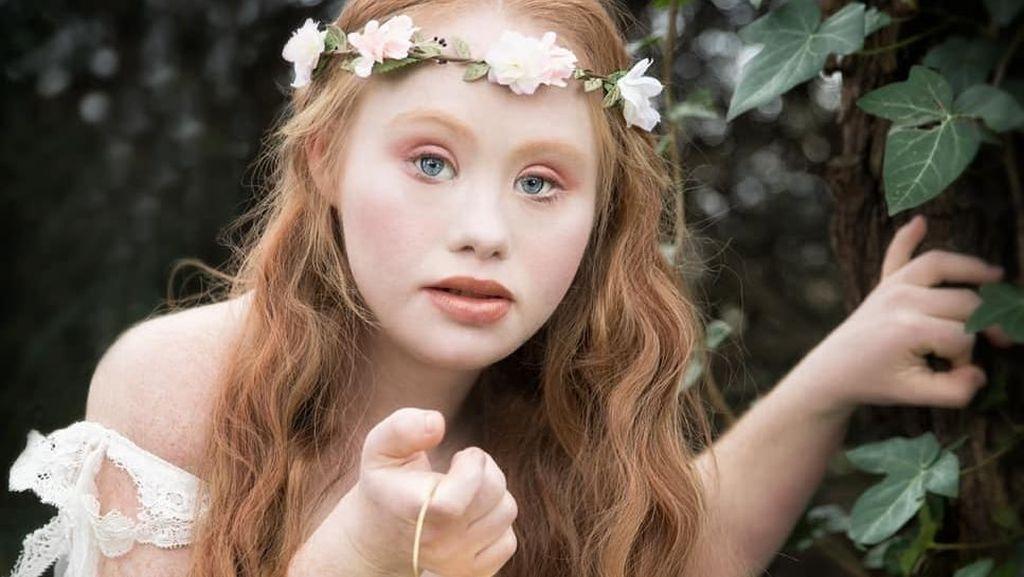 Liburannya Model Down Syndrom Cantik, Madeline Stuart