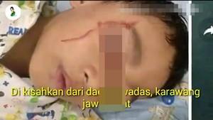 Viral Bocah di Karawang Matanya Berdarah, Benarkah Kelamaan Main Gadget?