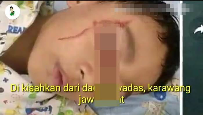 Bocah ini dikabarkan matanya berdarah karena kelamaan main gadget. Videonya viral di medsos (Foto: capture)