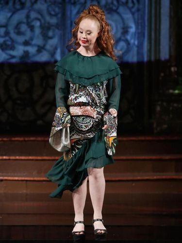 Mimpi Besar Model Down Syndrome Bisa Cetak Sejarah di Show Victoria's Secret