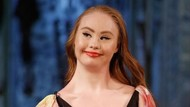 Mimpi Besar Model Down Syndrome Bisa Cetak Sejarah di Show Victorias Secret