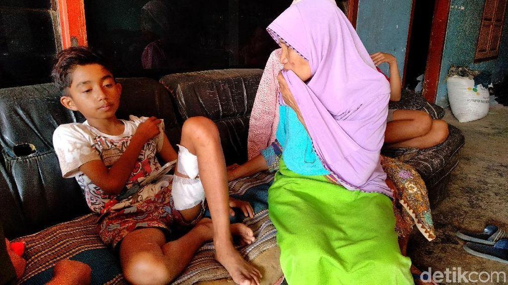 Bocah MI Malang Dikeroyok 6 Anjing Pemburu: Saya Pukul dengan Sandal