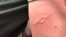 Usai menghisap darah nyamuk bisa meninggalkan bentol di kulit manusia korbannya. Nah ada beberapa warganet yang mendapat hadiah bentol unik dari nyamuk.