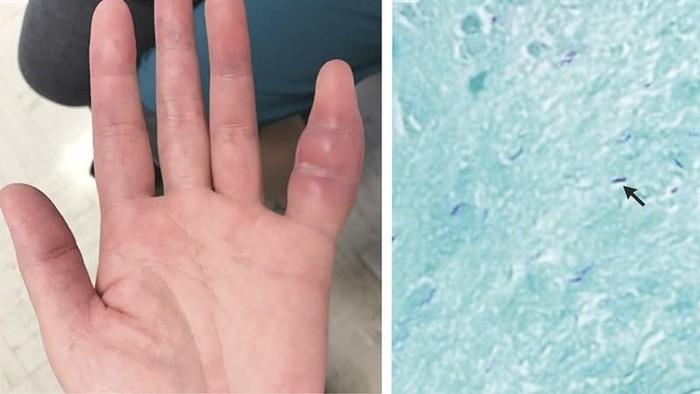 Foto penampakan jari kelingking yang bengkak dan hasil dari pengamatan jaringan lunak. Foto: The New England Journal of Medicine