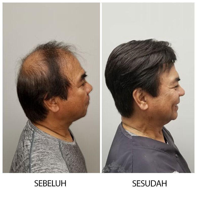 Peneliti Terkejut, Ada Metode yang Cepat Menumbuhkan Rambut