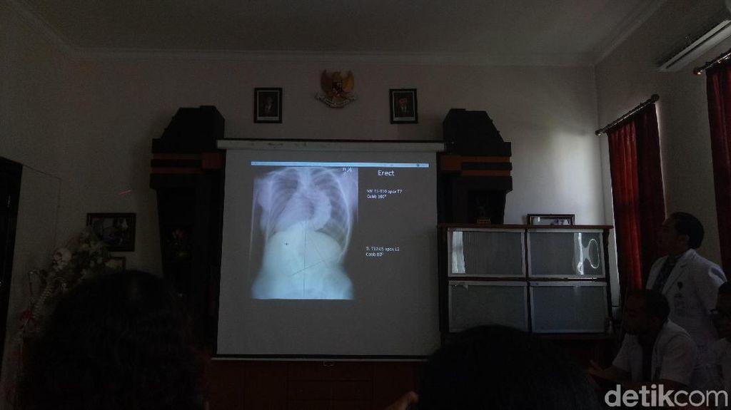 Pertama di Bali, RSUP Sanglah Sukses Mengoperasi Skoliosis Langka