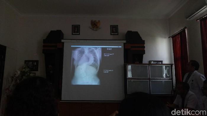Kelengkungan tulang belakang yang dialami Febi mencapai 100 derajat hingga menyentuh paru-paru. (Foto: Aditya Mardiastuti/detikHealth)