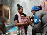 Tolong! Bayi Kembar Siam di Gunungkidul Ini Butuh Uluran Tangan