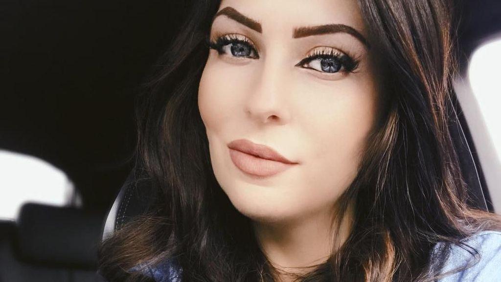 Foto Before-After Wanita yang Habiskan Rp 78 Juta Demi Punya Wajah Baru