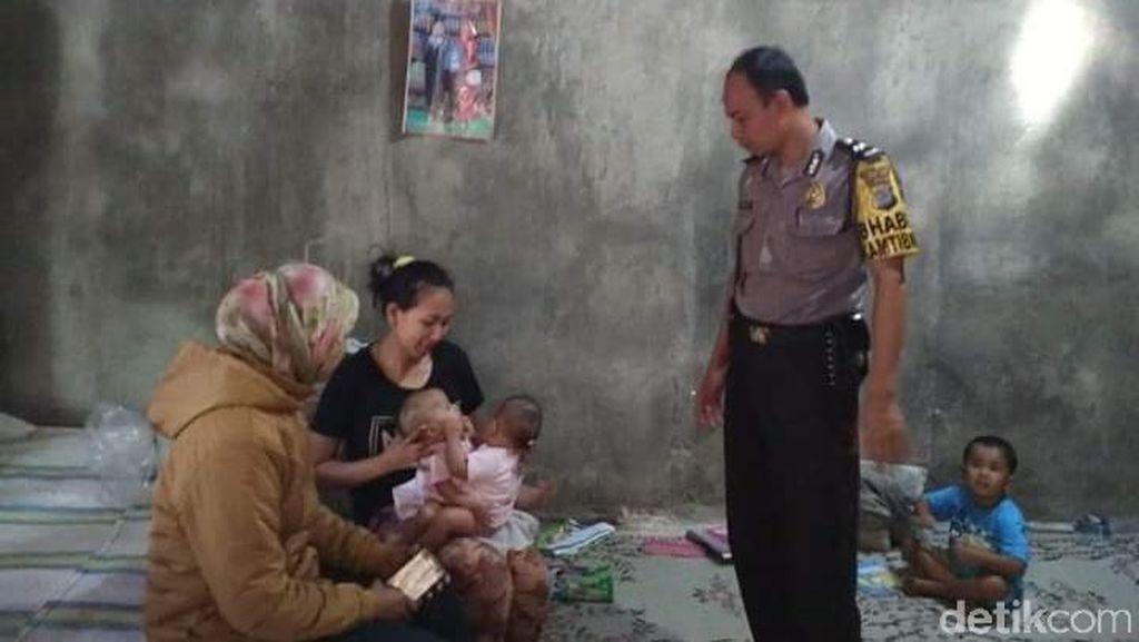 Dinsos Gunungkidul Rapat Cari Solusi untuk Bantu Bayi Kembar Siam