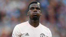 Fans Juventus Ingin Pogba Kembali? Deschamps: Bermimpi Sah-Sah Saja