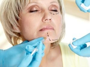 Nenek Ini Terlihat Seperti Wanita Berusia 20 Tahun Usai Operasi Plastik