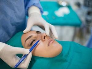 Artis Rusia Minta Donasi untuk Perbaiki Hidung yang Busuk Akibat Gagal Oplas