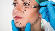 Kerja Demi Biaya Oplas Rp 56 Juta, Remaja Ini Malah Meninggal Saat Operasi