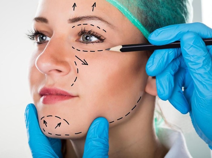 Close-up Of A Surgeon Drawing Perforation Lines On Young Womans Face For Plastic Surgery