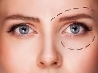 1. Operasi Plastik Mata