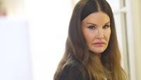 Namun ia memutuskan untuk melakukan operasi plastik yang berdampak pada wajah cantiknya itu.Mark Makela/Getty Images