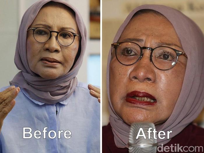 Penampilan wajah Ratna Sarumpaet sebelum dan setelah operasi plastik. Foto: Detikcom