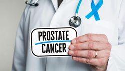 Keju dan Olahan Susu Tingkatkan Risiko Kanker Prostat?