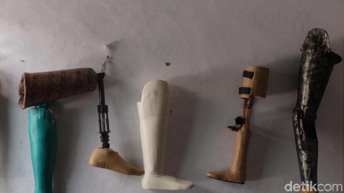 , kaki prostetik juga harus dirawat penggunaannya agar tidak infeksi. (Foto: Baban Gandapurnama/detikcom)