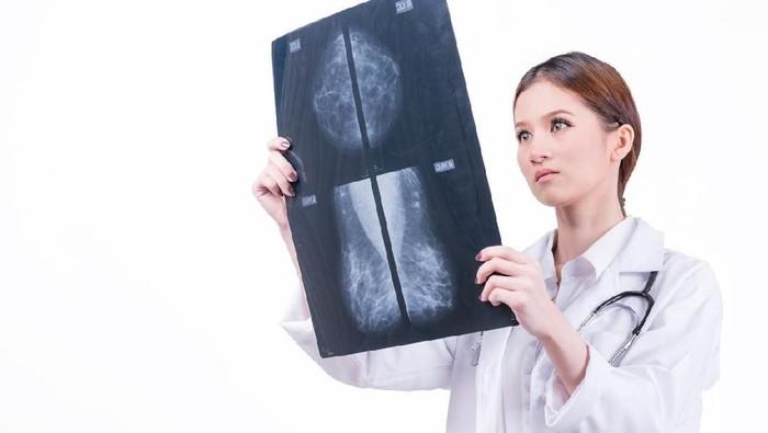 Ilustrasi seorang ahli mengamati hasil scan payudara (Foto: iStock)