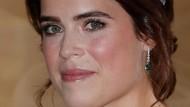 Putri Eugenie Pamer Bekas Luka Operasi Skoliosis, Ini Pesan Inspiratifnya