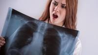 Beda Rontgen Paru-paru Pasien COVID-19 yang Sudah Divaksin Vs Belum Divaksin