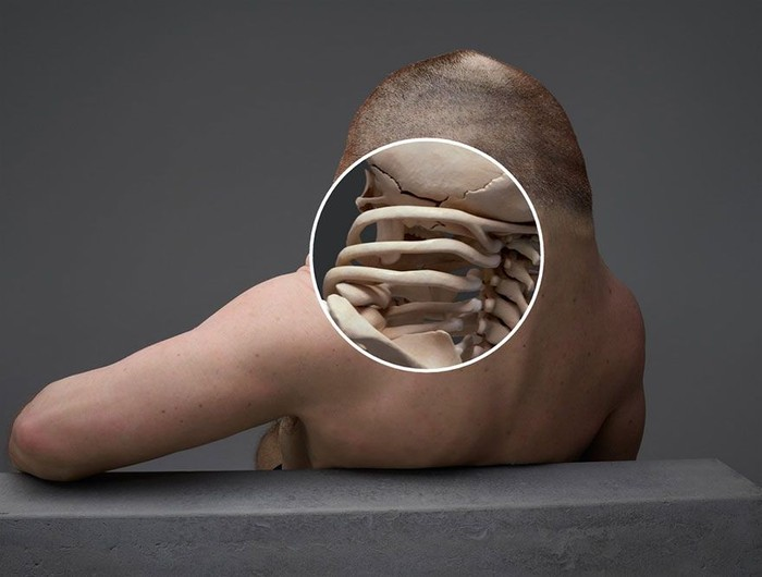 Agar leher tidak mudah cedera akibat pergerakan mendadak, Graham punya tulang ekstra yang berfungsi sebagai penahan. (Foto: ABC Australia/TAC)