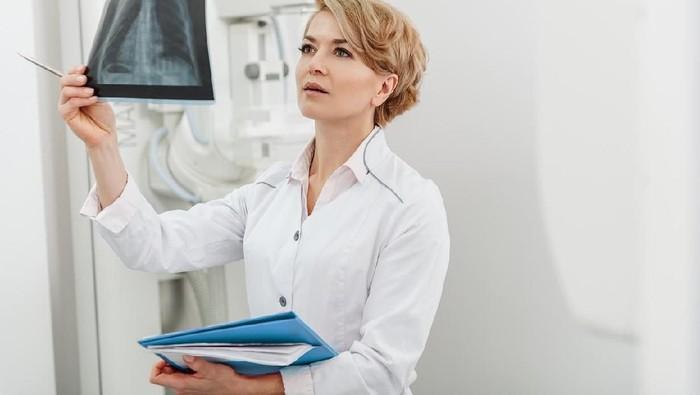 Perokok pasif maupun aktif punya risiko yang sama untuk kena kanker paru (Foto: iStock)