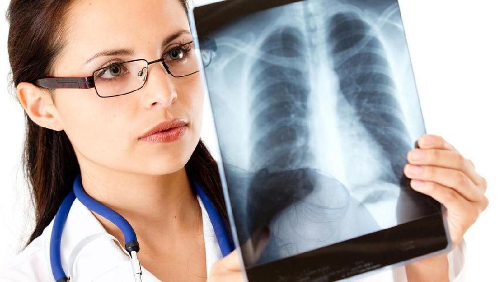 5 Fakta Patah Tulang Rusuk Seperti Dialami Saleem Iklim