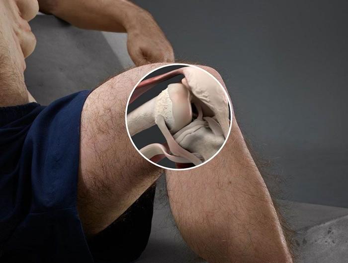 Lutut Graham memiliki sendi yang bisa berputar bebas. Dengan demikian risiko untuk terjadi cedera karena gerakan memaksa yang tidak alami berkurang drastis. (Foto: ABC Australia/TAC)