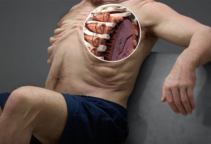 Tulang rusuk Graham dilapisi otot-otot tebal sehingga bisa tahan tekanan dari sabuk pengaman bila terjadi kecelakaan. (Foto: ABC Australia/TAC)