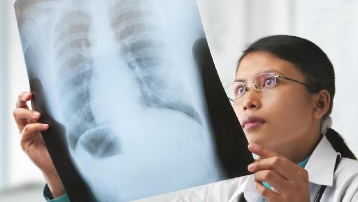 Kanker paru sering terlambat terdeteksi karena memang tidak selalu menampakkan gejala (Foto: iStock)
