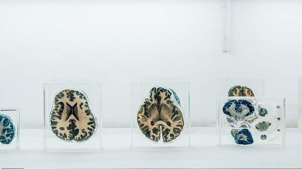 Tak cuma sebagai pajangan, spesimen otak di museum ini juga dipelajari oleh para peneliti NIMHANS. Traveler bisa berkunjung ke sini untuk mendapatkan ilmu dan pengetahuan baru terkait otak manusia. (NIMHANS)