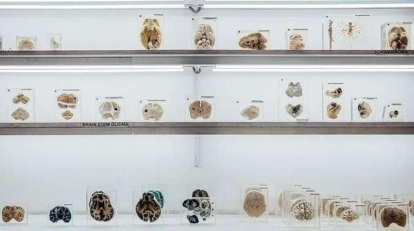 Hii.. Museum di India Ini Simpan Ratusan Otak Manusia