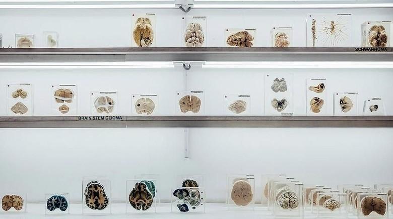 Koleksi otak manusia di Museum Otak India (dok. NIMHANS)