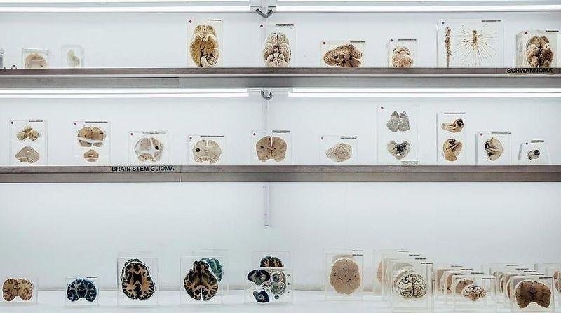 Inilah sebagian koleksi dari Brain Museum di Bangalore, India. Brain Museum jadi museum otak pertama dan satu-satunya di India. Letaknya di dalam kompleks NIMHANS alias National Institue of Mental Health and Neuro Science. (NIMHANS)